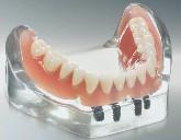 Dentier (prothèse complète) sur implants